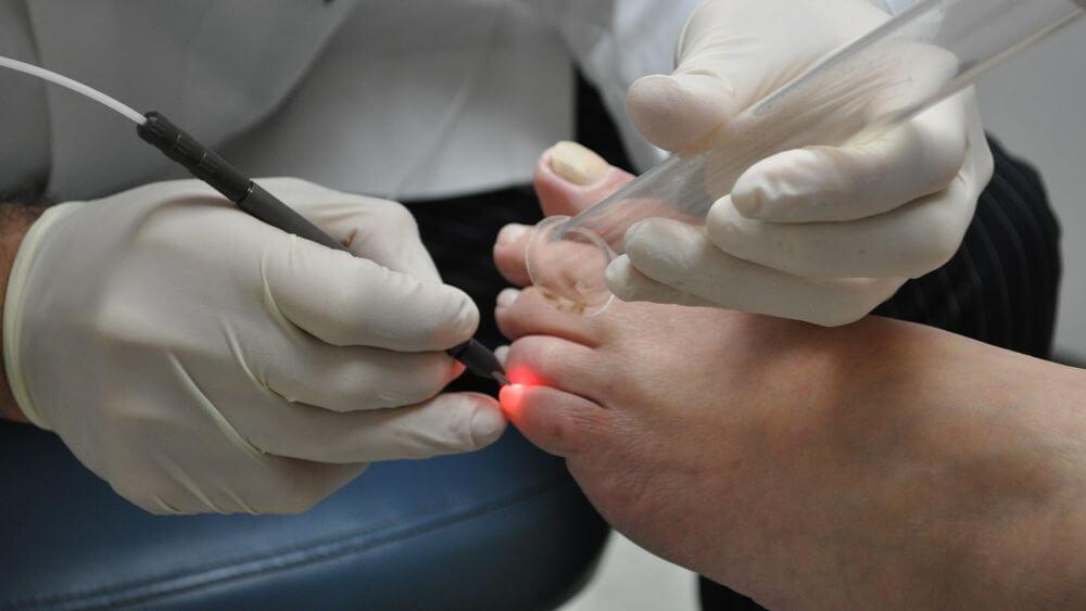 Лечение вросших ногтей лазером