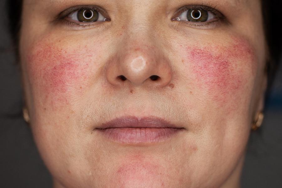 Лечение розацеа в Правильной косметологии