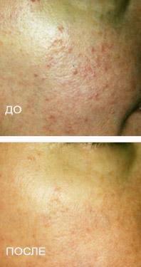 Какие продукты при угревой сыпи на лице
